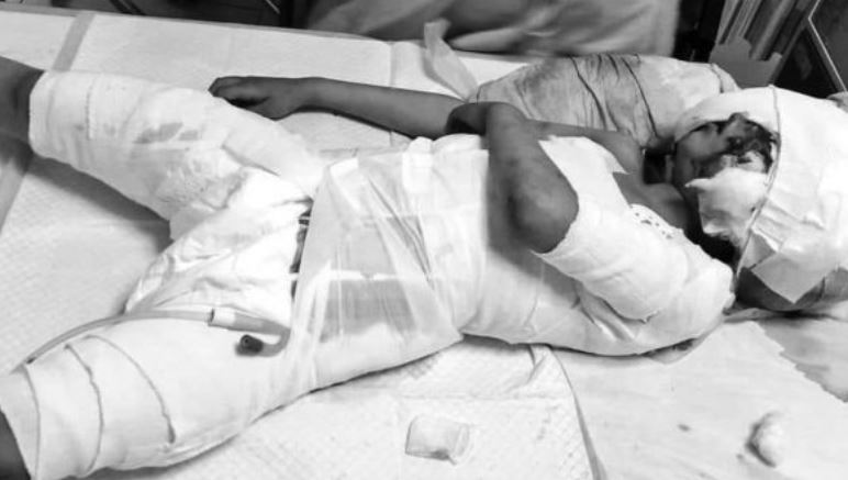 Child bit by stray dogs in Larkana breaths his last