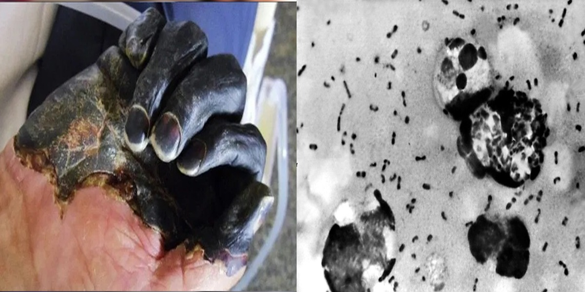 China reports cases of Bubonic plague, WHO monitoring the situation