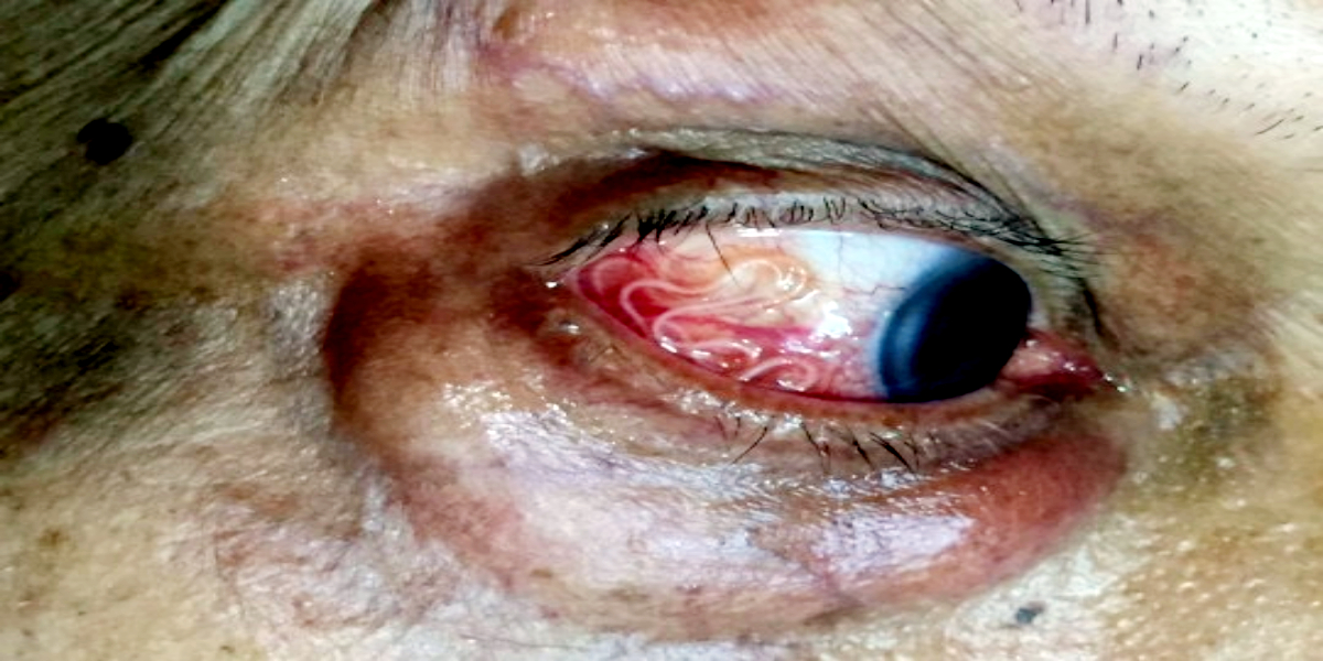 Doctor Removing 20 Live Worms From Patient's Eye