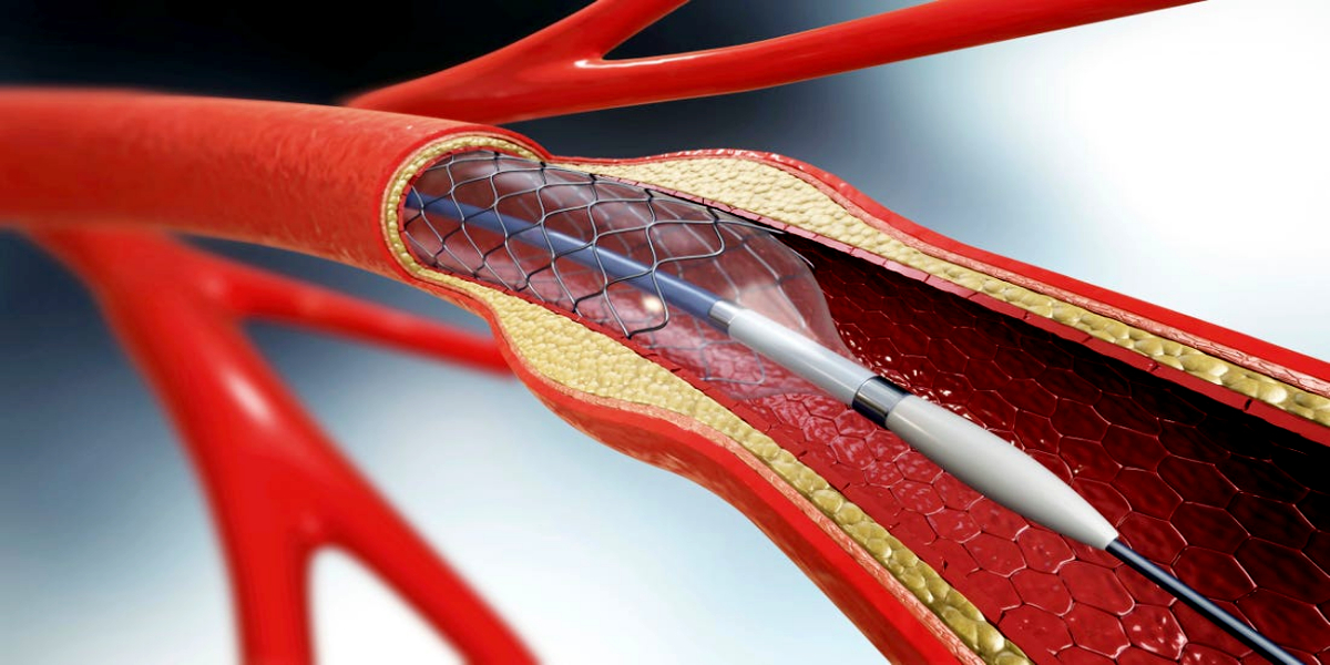 Heart stents