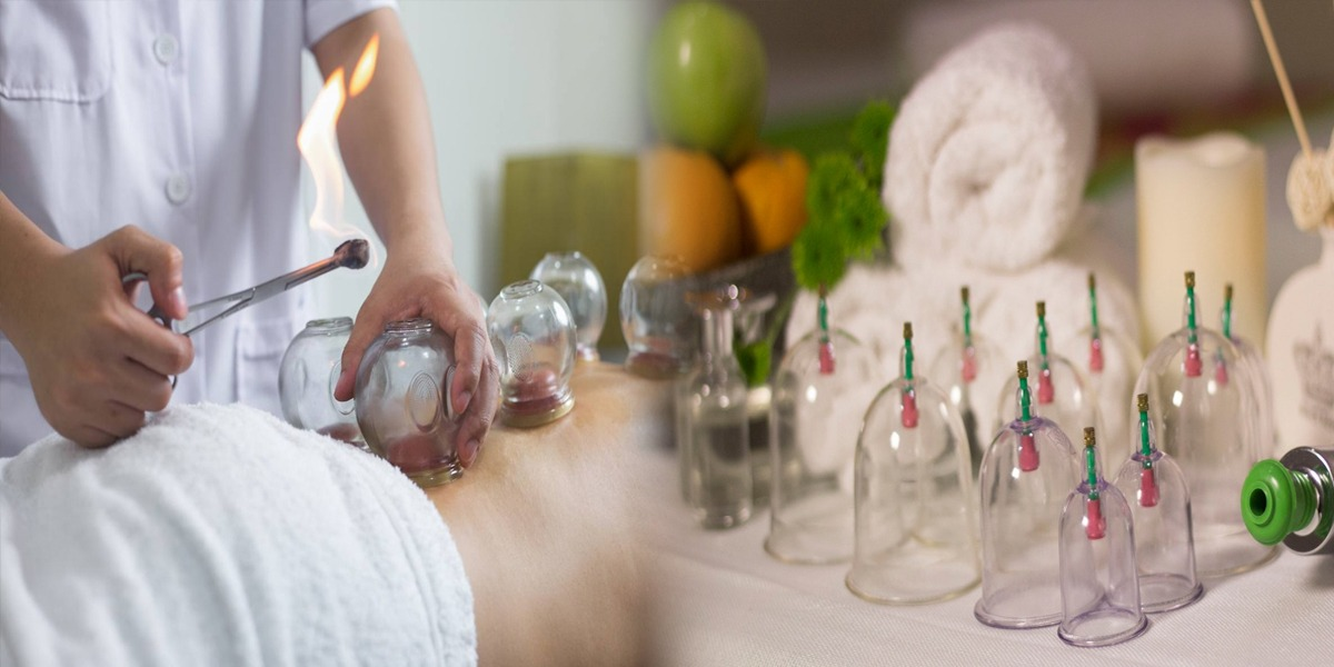Cupping - Hajama health benefits