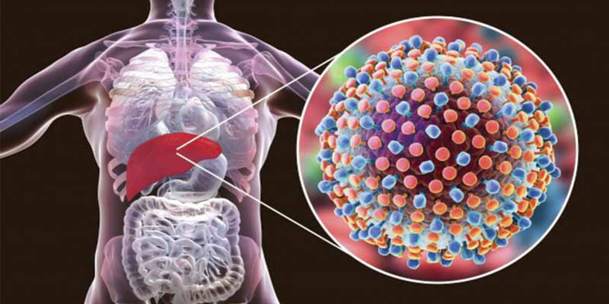 Hepatitis: Here Are Some Of Symptoms And Early Warning Signs