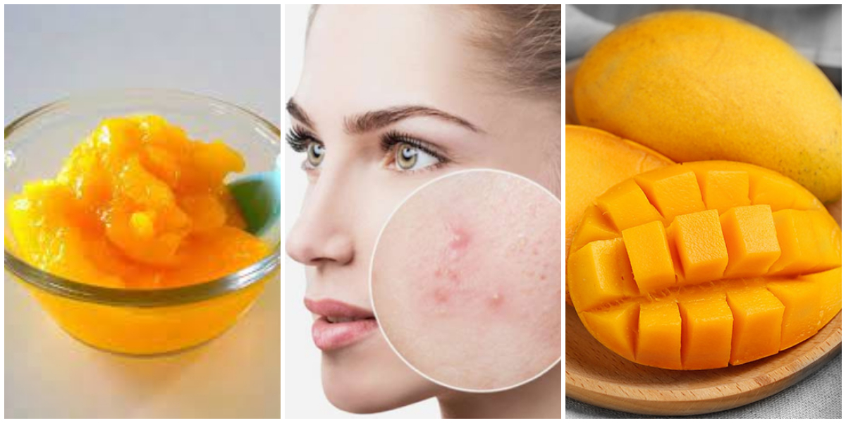 Use This Mango Pulp Mask To Get Clear Pimple Free Skin