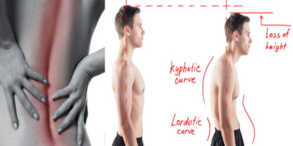 Exercises To Avoid Poor Posture