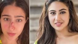 Sara Ali Khan nose injury