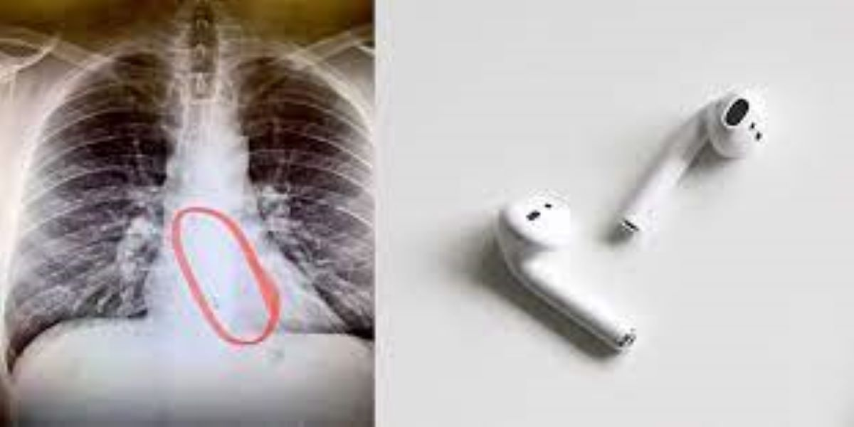 A young man swallowed the AirPods down his throat while sleeping